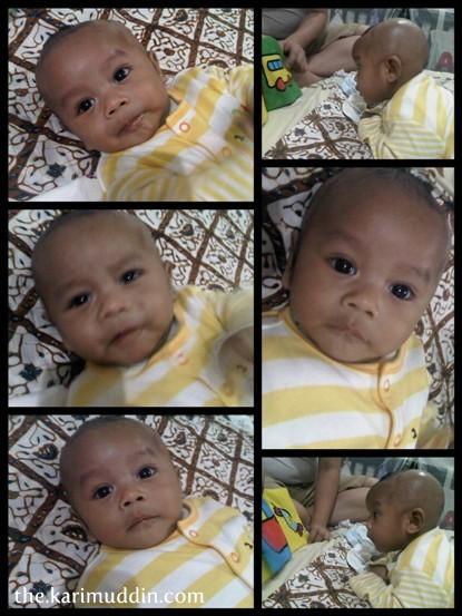 Botak Asoy